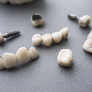 Which Is Better Between Tooth Bridge And Dental Implant