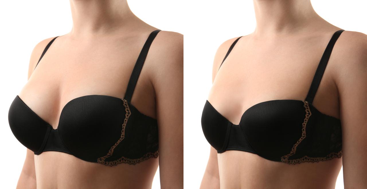 Breast augmentation fetch site info