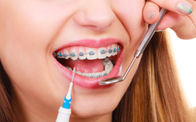 Emergency Dental Care For Your Braces