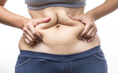 Everything To Know About Obesity Surgery