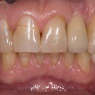Treatments for bone loss in teeth