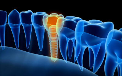 Dental Implant Infection Treatment