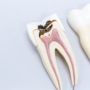 Calcified Root Canal: Causes and Treatment