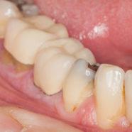 Dark Gumline: Causes and Treatment