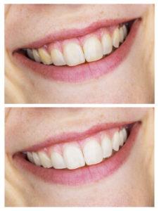 Zoom whitening side-effects on teeth