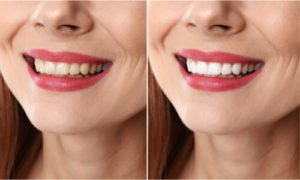 condition before and after teeth whitening