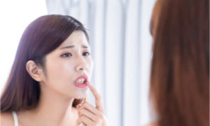 woman worried if she has tooth decay