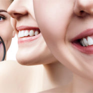 Zoom whitening side-effects on teeth